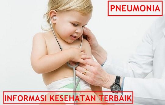 Pengobatan Pneumonia Pada Anak dan Bayi Tradisional