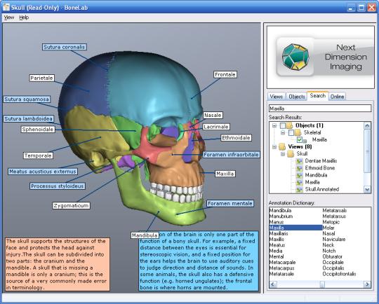 BoneLab 1.0.3.5.0 [Software de anatomía][Español] - AccionglobalXSoft