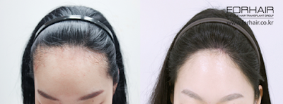 before and after hairline, before and after fue, before and after korean, forhair korea