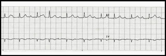 Float Nurse: Practice EKG Rhythm Strips 234