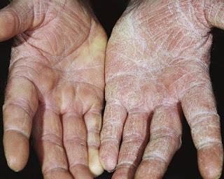 mantar hastalıkları kaç çeşittir