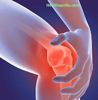 गठिया आर्थराइटिस Arthritis