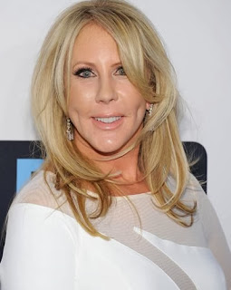 Vicki Gunvalson great plastic surgery