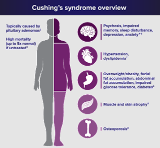 image result for cushing's syndrome