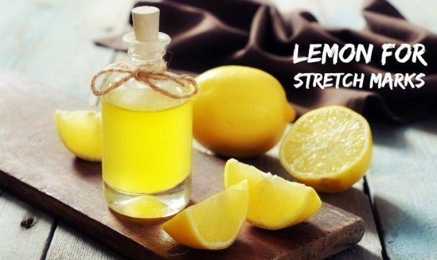 Cara Paling Mudah Mengatasi Stretch Marks Dengan Diet Dan Sari Lemon