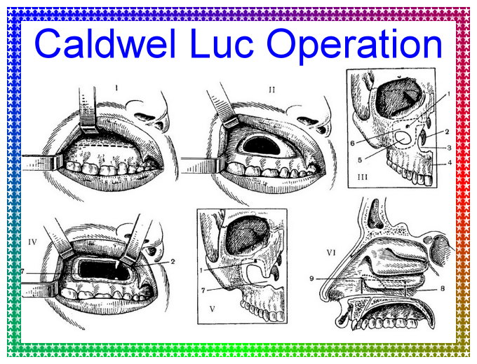 Caldwel luc operation