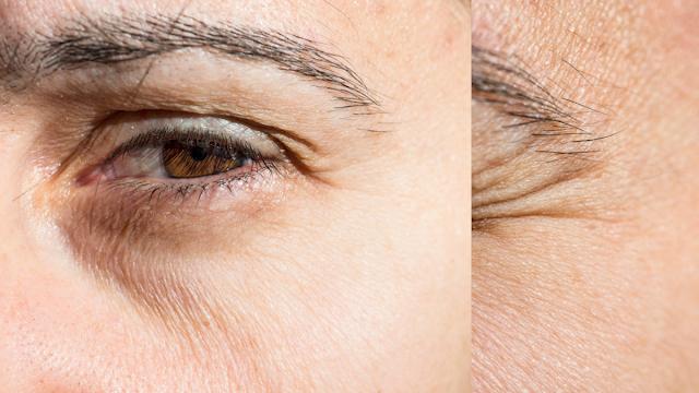 cara menghilangkan keriput di bawah mata