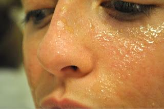 Miel Para Tratar El Acne