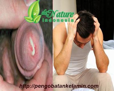 Kencing nanah atau gonore - de Nature