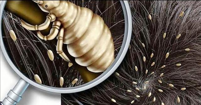 Apa Itu Kutu Rambut & Cara Merawatnya