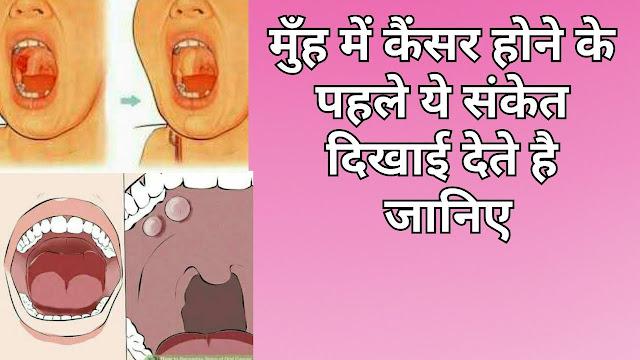 मुँह में कैंसर होने के से पहले ये संकेत दिखाई देते है