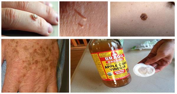 Cum să scapi de negi, alunițe și petele de vârstă cu remedii naturale