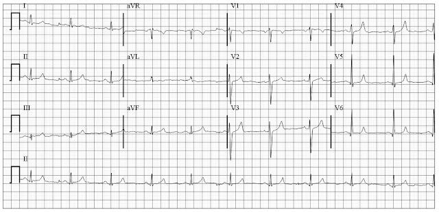 ECG of hyperkalemia