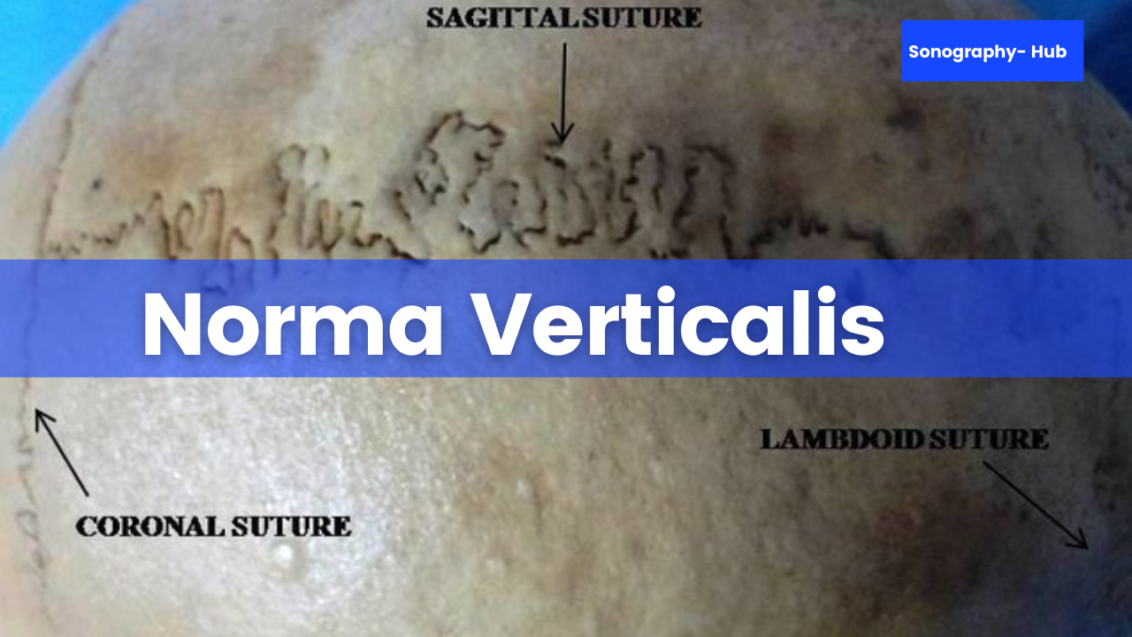 Norma Verticalis- Exterior of the skull