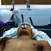 Joven en estado delicado tras ser atacado con un desarmador en la cabeza.