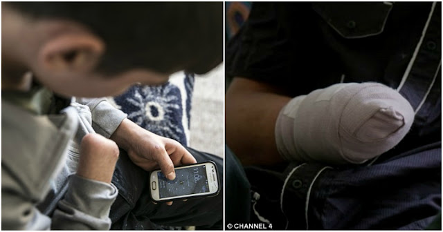 Χασάπης έπιασε το γιο του να αυvανίζεται και του έκοψε το χέρι με χασαπομάχαιρο