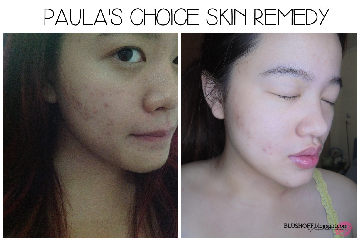 Paula's Choice Skin Remedy & The Secret - BLUSHOFF