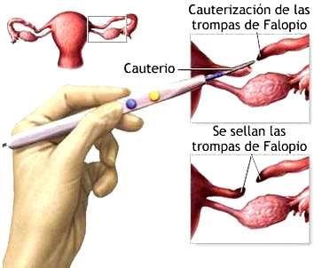 Dibujo del cauterio a las Trompas de Falopio de la mujer
