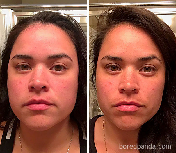 10+ Before-And-After Pics Show What Happens When You Stop Drinking - 100 Days Sober