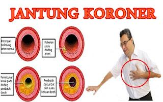 pengertian jantung koroner, pengobatan jantung koroner, obat jantung koroner,