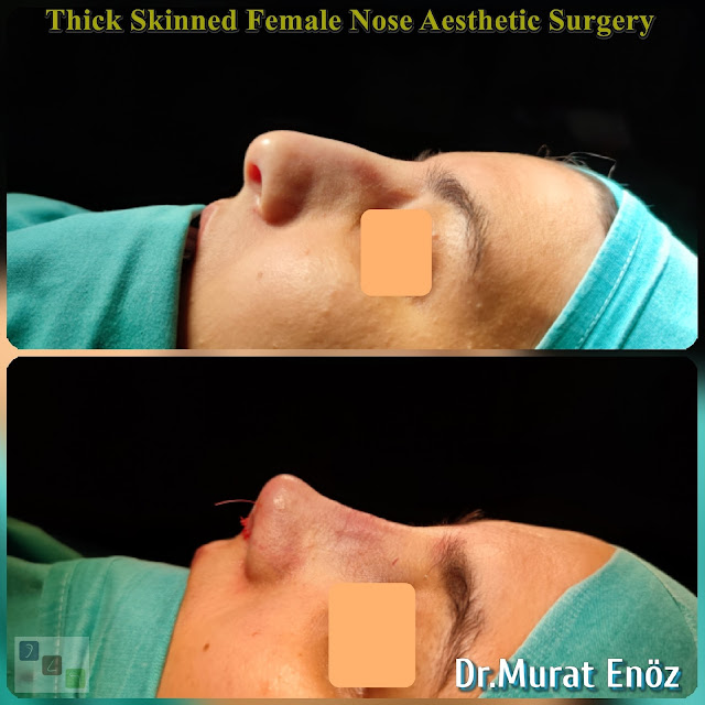 femal nose job,rhinoplasty operation in istanbul,nose job for women,thick skinned nose aesthetic,Ethnic rhinoplasty,nose job for thick skinned nose,