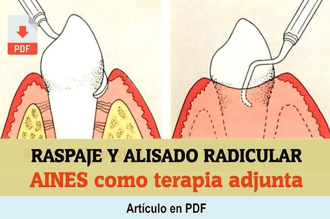 PDF: AINES como terapia adjunta al raspado y alisado radicular en Periodontitis