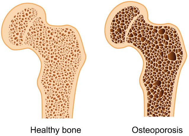 Penyebab osteoporosis Menurut konsep karnus