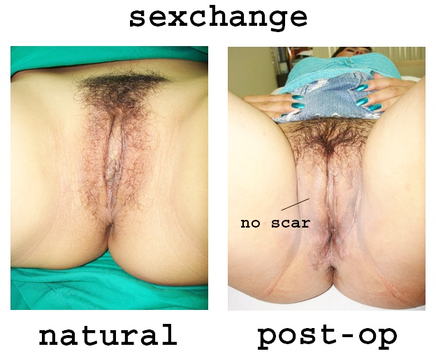 Sex Change Before And After Female To Male