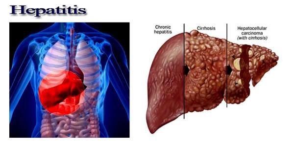 Cara Mengobati Hepatitis Secara Alami