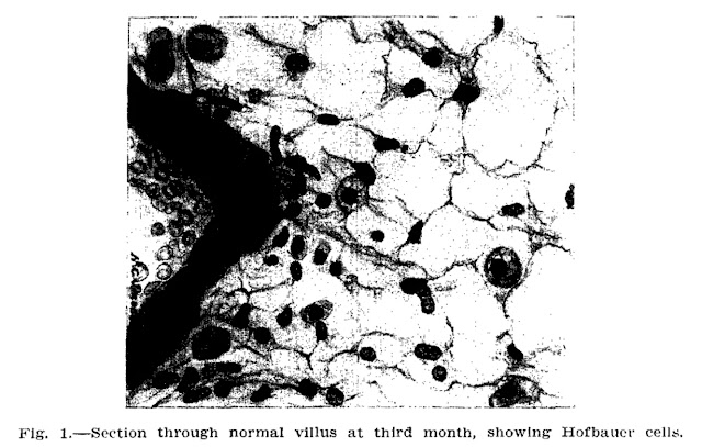 Hofbauer Cells - 1925