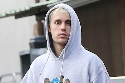 Famous-Singer-Justin-Bieber-has-been-suffering-from-Lyme-disease-Andhra-Talkies