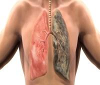 5 Cara Mengobati TBC Agar Tidak Menular yang Terbukti Manjur