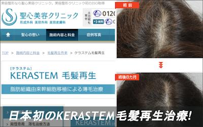 日本初のKERASTEM(ケラステム)毛髪再生治療、今なら臨床モニターで激安価格!