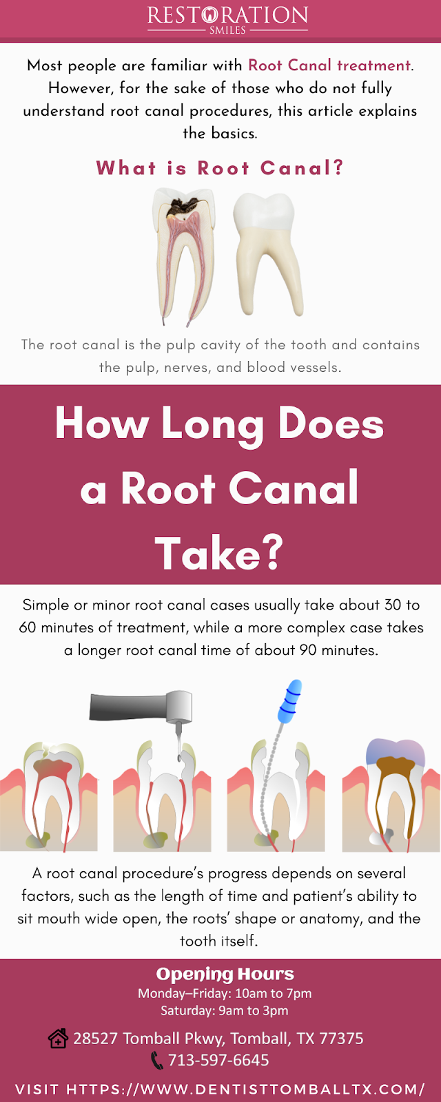 How Long Does a Root Canal Take?