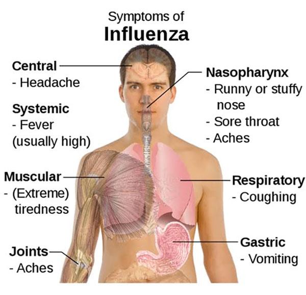 Cara Mencegah Virus Influenza