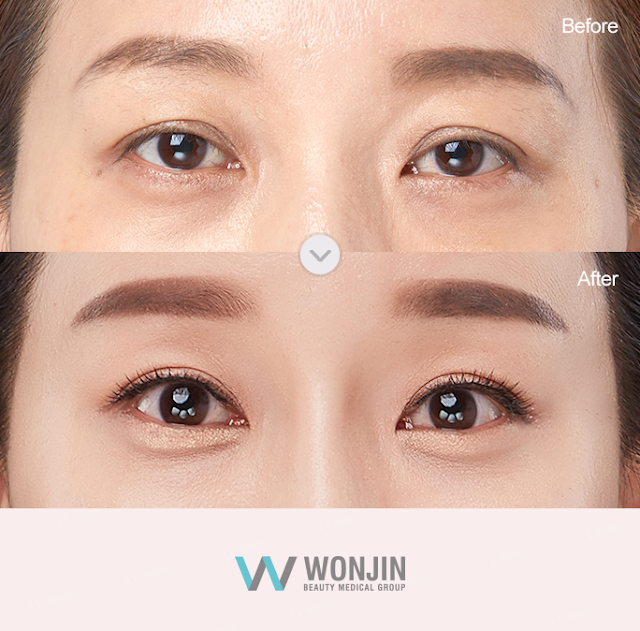 Korean Eyelid Surgery