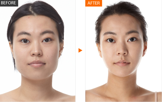 plastic surgery in korea face contouring two jaw surgery what s