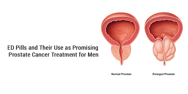 ED Pills and Their Use as Promising Prostate Cancer Treatment for Men