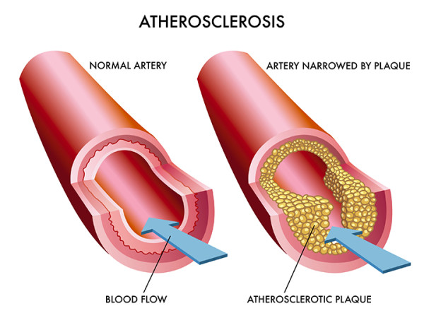 Atherosclerosis Disease