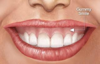 Chữa cười hở lợi không phẫu thuật bằng cách tiêm chất botox