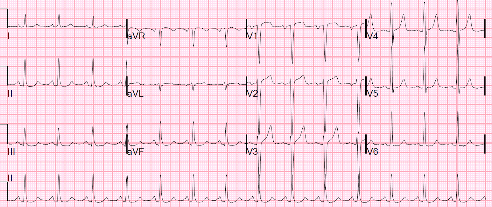 dr smiths ecg blog dyspnea and convex st elevation