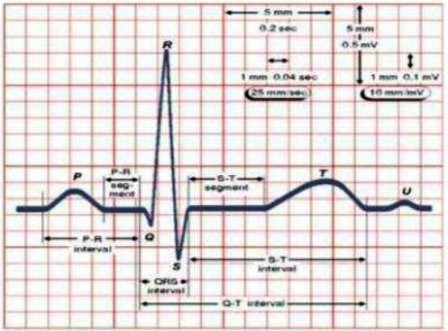 Pulse Jantung Normal