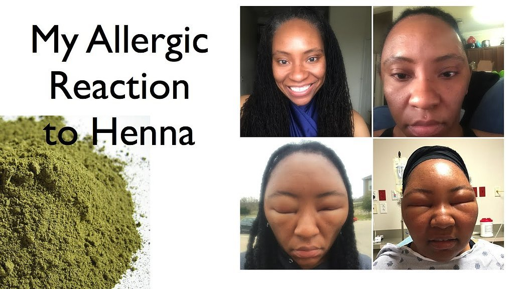 Lifestyle Blogger Chemese Armstrong Has Allergic Reaction To Henna