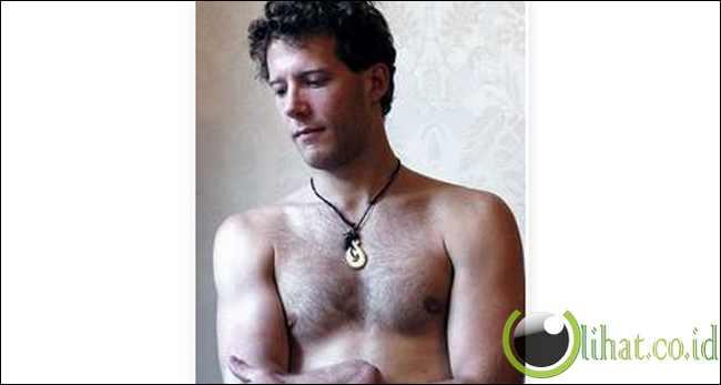 Aron Ralston,Born 1975 - Amputasi Tangan kanan