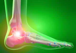Symptoms and Causes of High Uric Acid Levels