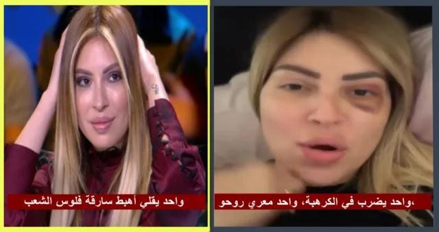 بالفيديو  مريم الدبّاغ تتعرض لعملية براكاج خطيرة ! التفاصيل