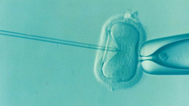 IVF Treatment Process