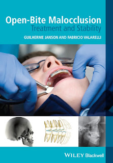 Open-Bite Malocclusion Treatment and Stability