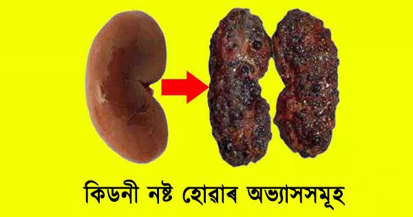 Habits that harm kidney