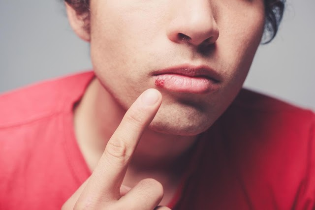 symptoms, causes and treatment of Cold sores with natural remedies